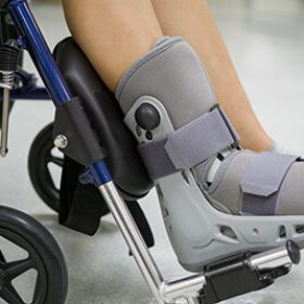 Orthopaedic Boot to a Patient. medical orthopedic concept.